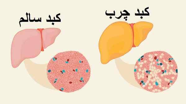 کبد چرب: علائم علل درمانها و تشخیص