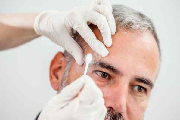 سرما درمانی برای پاکسازی لکه های پیری