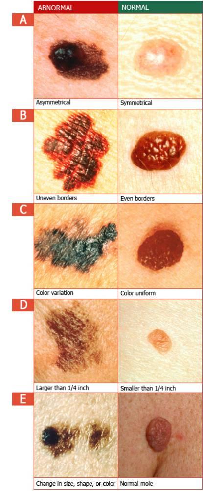 گایدلاین یا راهنمای ABCDE در مورد تغییرات پوستی ناشی از سرطان