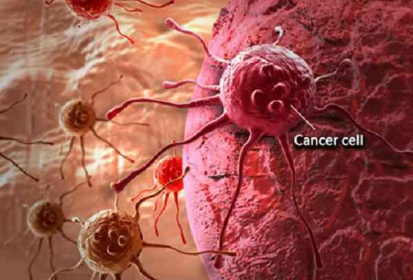 17 علامت سرطان که باید بدانید