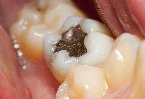 مواد پر کننده دندان می تواند به یک محل پرورش محبوب باکتری ها تبدیل شود.