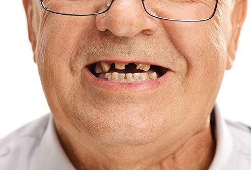 دهان خود را تمیز نگه دارید تا از باکتریهای بدبو جلوگیری شود.