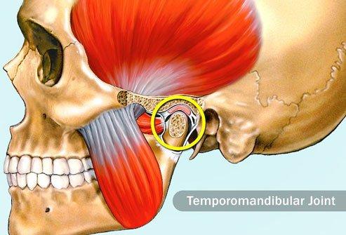 درد TMJ هنگام جویدن ممکن است باعث درد در دندان شود.