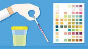 دو آزمایش ضروری در زمان بررسی ادرار بیماران دیابتی